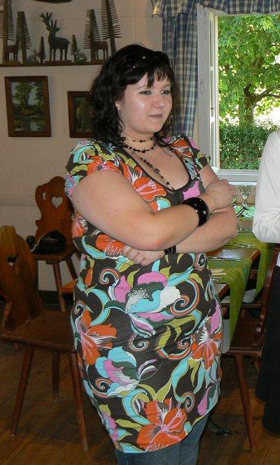 Photo de Frédérique avant son opération de chirurgie de l'obésité